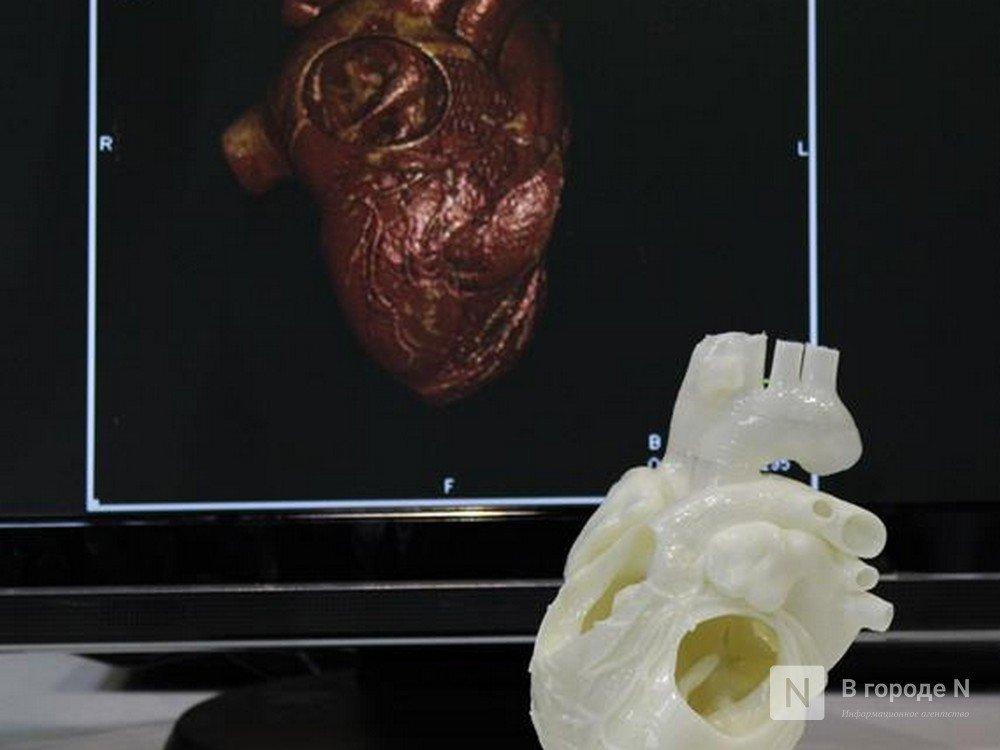 Эти изменения в вашей внешности говорят о проблемах с сердцем - фото 3